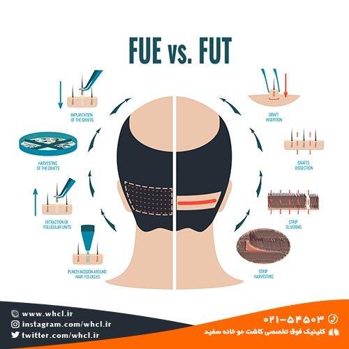 مقایسه روش های FIT و FUT در کاشت مو