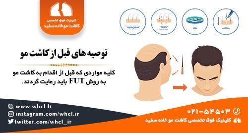 توصیه های قبل از کاشت مو به روش FUT