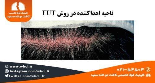 ناحیه اهدا کننده در روش FUT