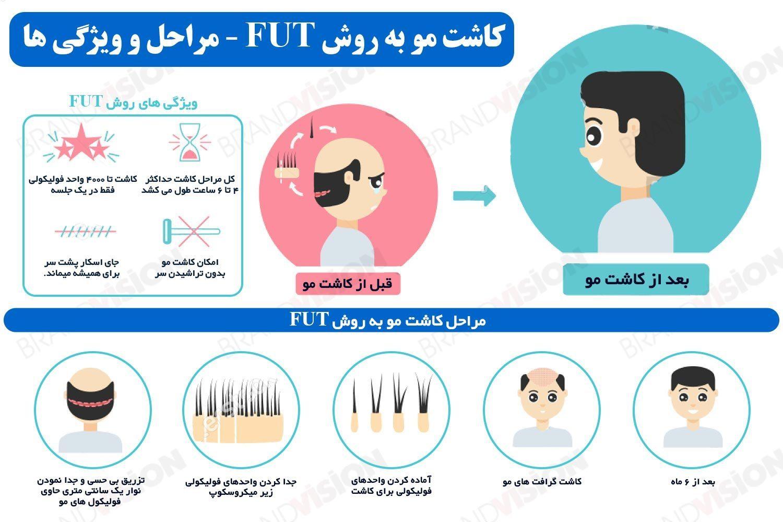 اینفوگرافی کاشت مو به روش FUT