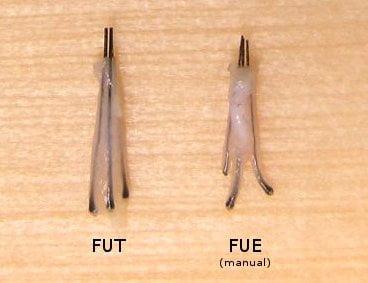 کیفیت گرافت های مو در روش FIT و FUT