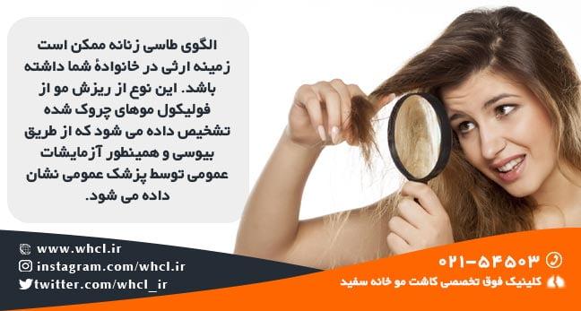 ریزش موی ژنتیکی