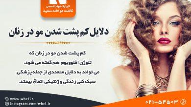 تصویر از دلایل کم پشت شدن مو در زنان و راه حل ها