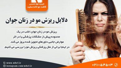 تصویر از دلایل ریزش مو در زنان جوان و راهکارهای جلوگیری از آن
