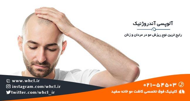 آلوپسی آندروژنیک رایج ترین نوع ریزش مو در مردان و زنان