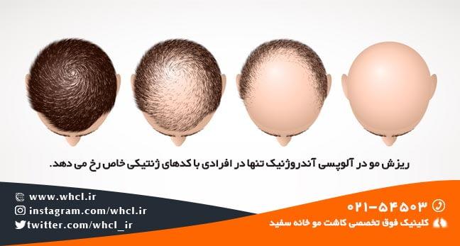 ریزش مو در آلوپسی آندروژنیک تنها در افرادی با کدهای ژنتیکی خاص رخ می دهد.