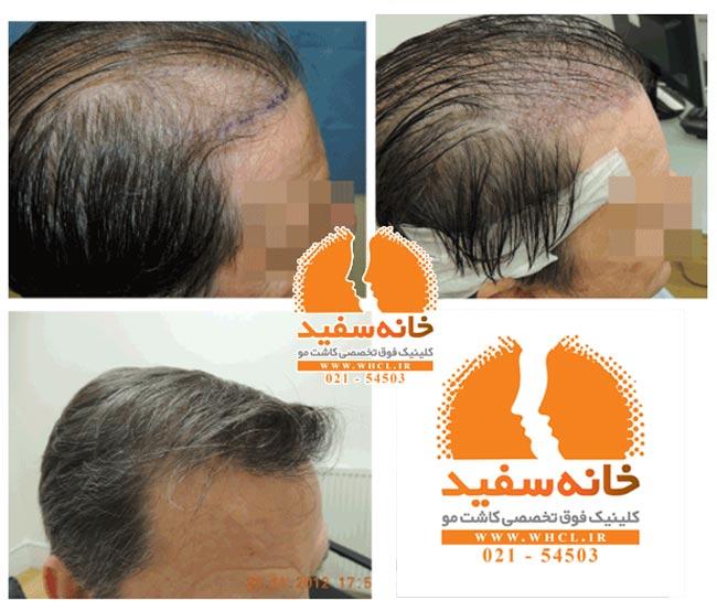 عکس شماره 6 - نمونه کاشت مو به روش UFIT