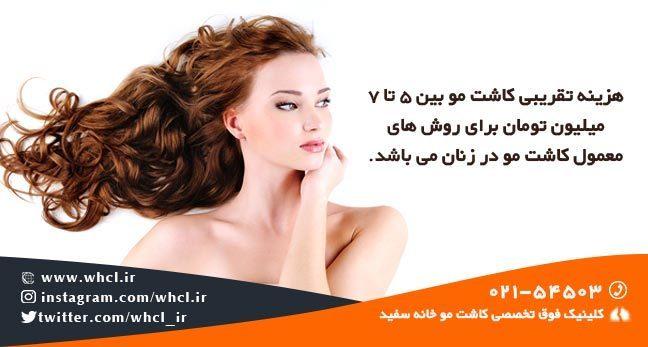 هزینه کاشت مو در زنان