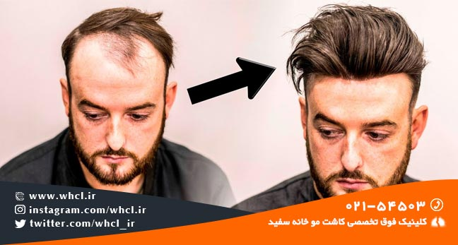کاشت مو بهتر است یا پروتز مو ؟