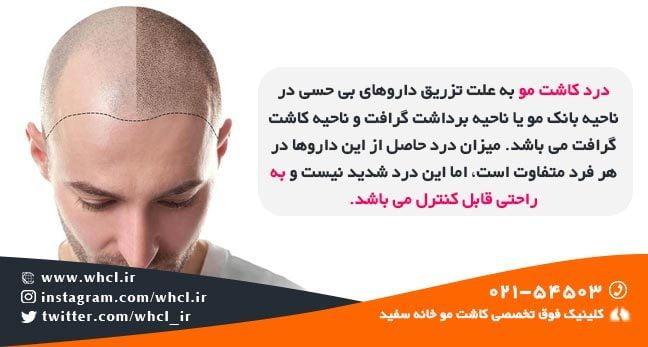 درد کاشت مو قابل تحمل است