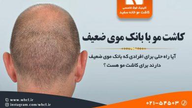 تصویر از کاشت مو با بانک موی ضعیف