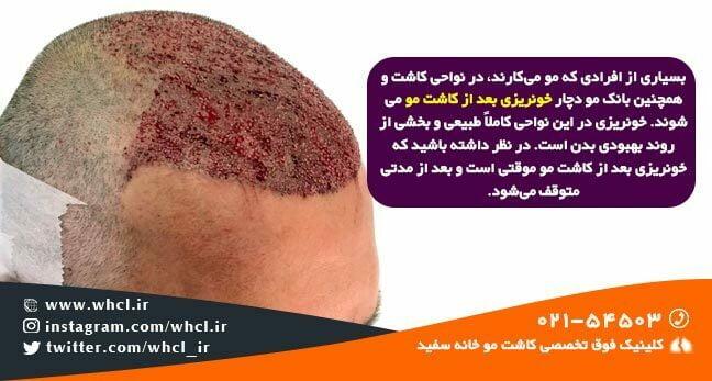 خونریزی بعد از کاشت مو موقتی است