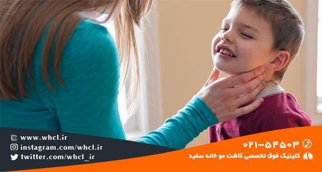 تیروئید در کودکان از عوامل ریزش مو می باشد.