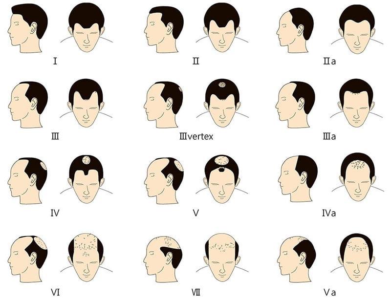 الگوی ریزش موی مردانه