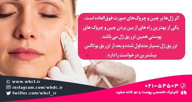 کاربرد تزریق ژل