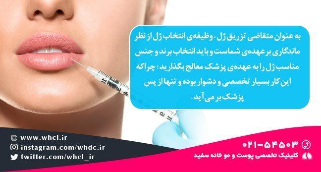 نکته مهم در تزریق ژل 2
