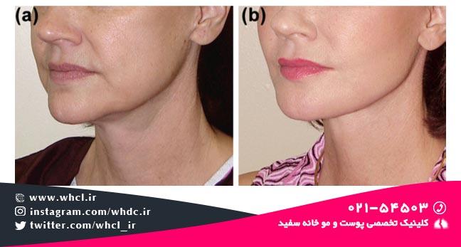 کانتور خط فک: (a) قبل از تزریق چربی، (b) بعد از تزریق چربی