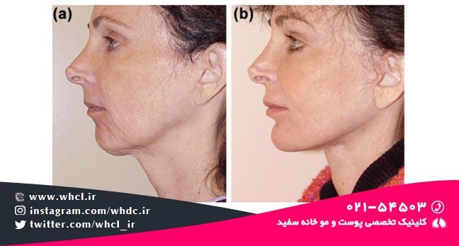 جبران کاهش حجم چانه و گردن: کانتور خط فک: (a) قبل از تزریق چربی، (b) بعد از تزریق چربی