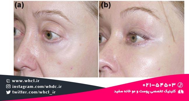 جبران فرورفتگیهای زیر چشم: (a) قبل از تزریق چربی، (b) بعد از تزریق چربی