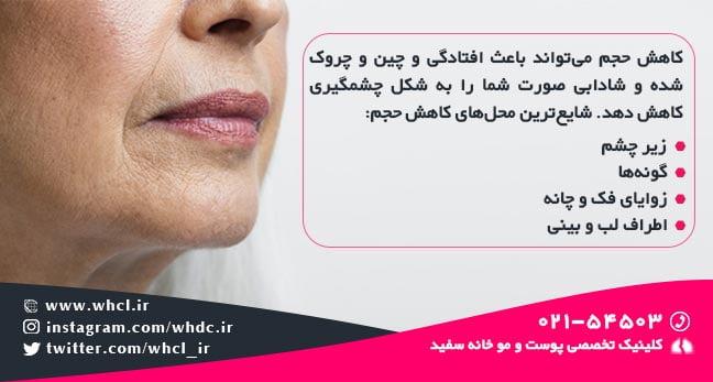 کاهش حجم پوست