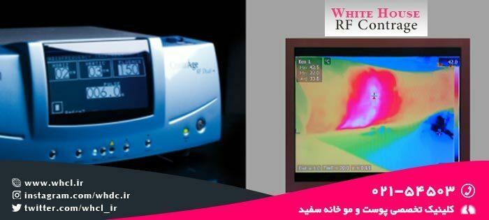 سیستم نظارت زنده دستگاه آر اف کونتراج