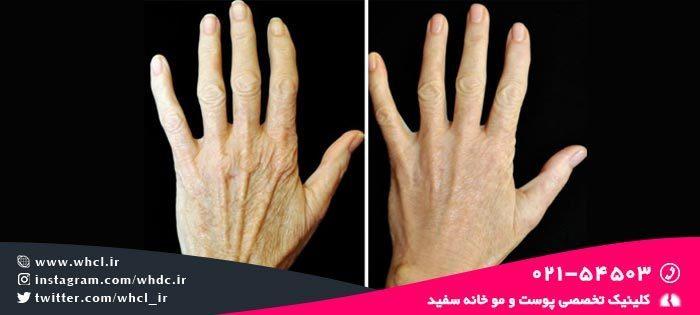 درمان چین و چروک دست ها