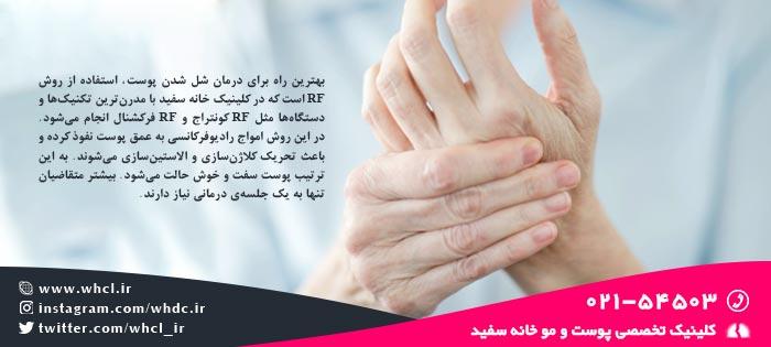 درمان شل شدن پوست دست ها