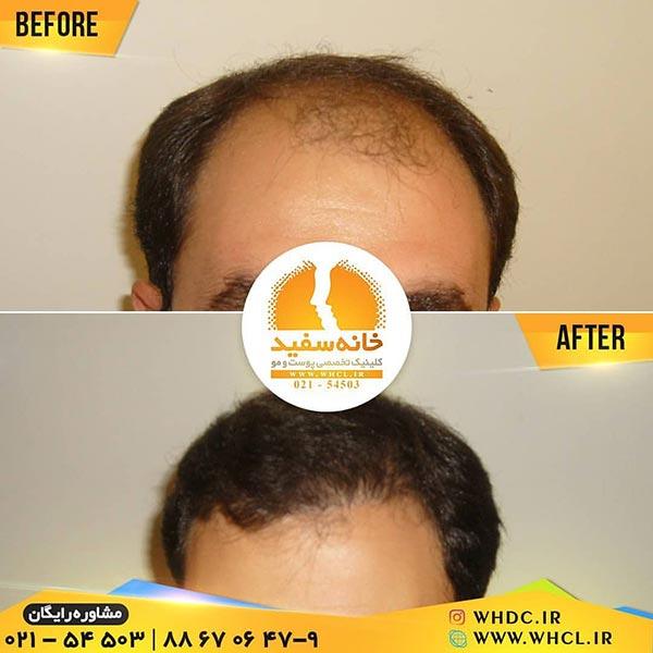 نمونه کاشت مو به روش FIT