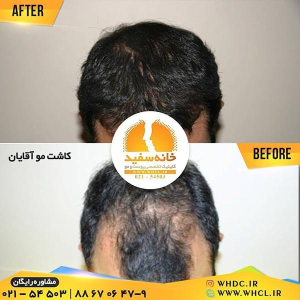 نمونه کاشت مو به روش إFIT