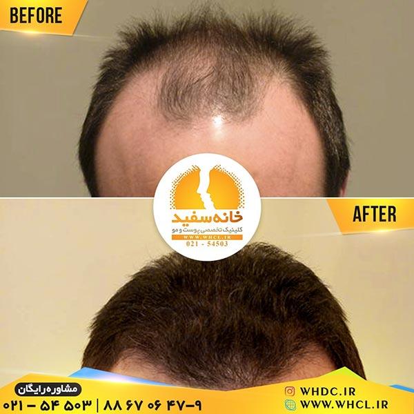 نمونه کاشت مو به روش SUT