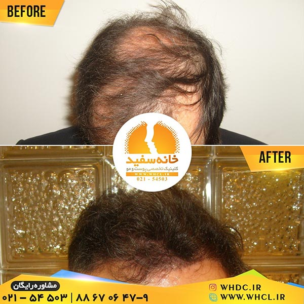 نمونه کاشت مو به روش FUT