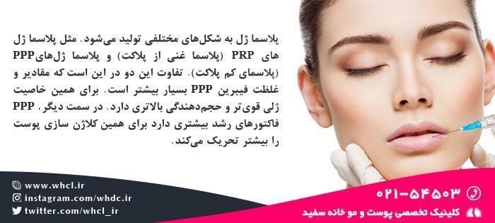 پلاسما ژل PRP , PPP