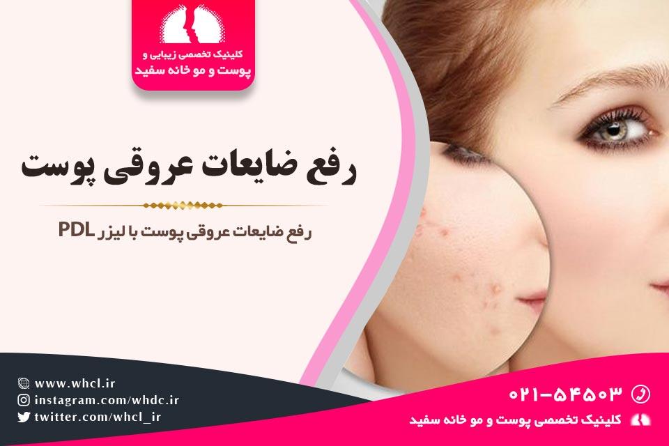 رفع ضایعات عروقی پوست
