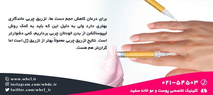درمان کاهش حجم پوست دست ها با تزریق چربی یا ژل