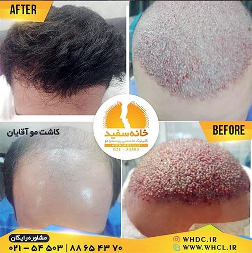 نمونه کاشت مو در کلینیک خانه سفید تهران
