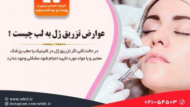 تصویر از آیا تزریق ژل به لب عوارض دارد ؟