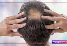 تصویر از جلوگیری از ریزش مو – راهکار مهم در مورد درمان ریزش مو