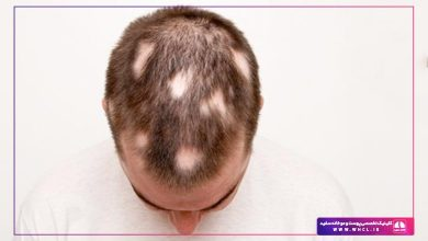 تصویر از علت ریزش موی سکهای و راه درمان آن چیست ؟ پرسش و پاسخ با پزشک