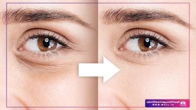 تصویر از روش های شگفت انگیز درمان سیاهی و جوانسازی دور چشم