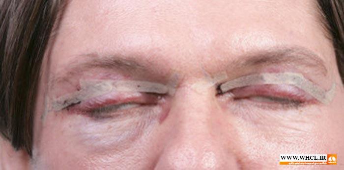 عوارض بعد از جراحی پلک