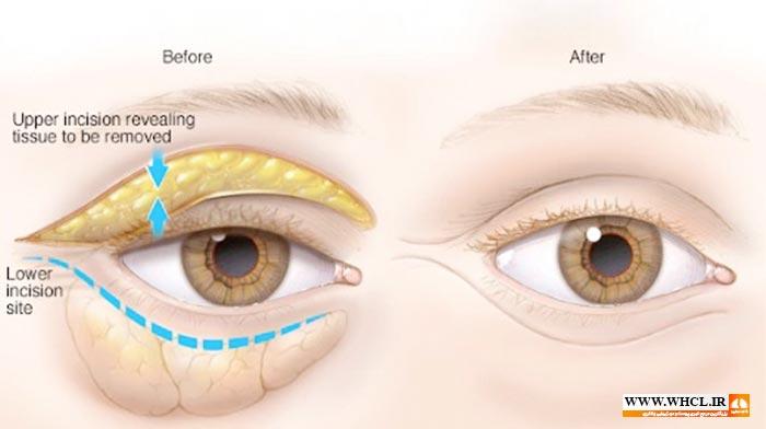 اینفوگرافی جراحی پلک
