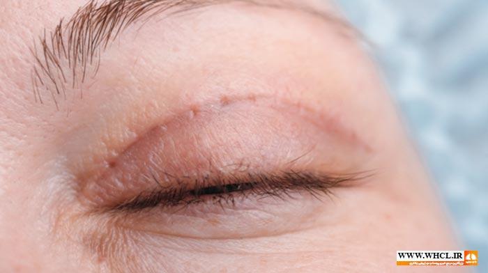 سیاهی اطراف چشم بعد از بلفاروپلاستی