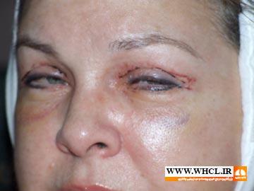 تورم و کبودی بعد از جراجی پلک