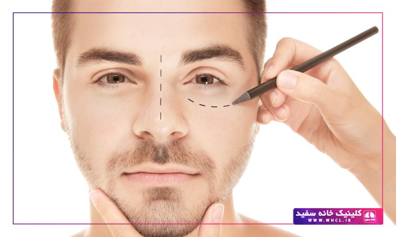 عوارض جراحی پلک