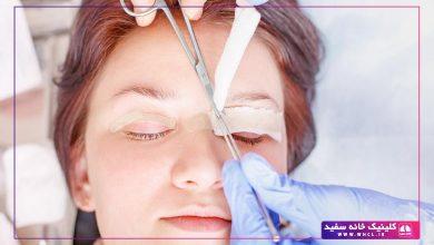 تصویر از مراقبت های بعد از بلفاروپلاستی یا جراحی پلک