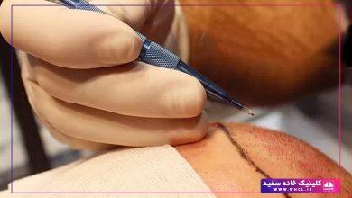 تصویر از کاشت مو ایران فیت راهی برای درمان طاسی مردانه