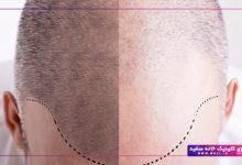 تصویر از چرا به تقویت موها بعد از کاشت مو نیاز داریم؟