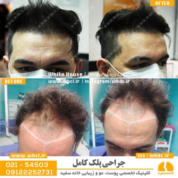 عکس قبل و بعد از کاشت مو به روش SUT